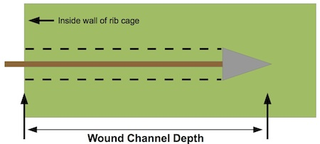 Figure B-2. Depth of wound channel. The critical part of the wound channel lies entirely within the thoracic cavity.
